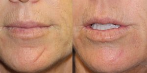 Scar Treatments and Mohs Reconstruction