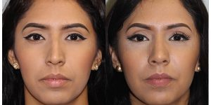 Rhinoplasty-Steven-Daines-MD-Appearance-Center-Newport-Beach-Orange-County-Plastic-Surgery1.1