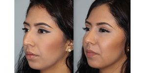 Rhinoplasty-Steven-Daines-MD-Appearance-Center-Newport-Beach-Orange-County-Plastic-Surgery1.2