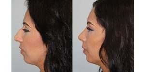 Rhinoplasty-Steven-Daines-MD-Appearance-Center-Newport-Beach-Orange-County-Plastic-Surgery1.3