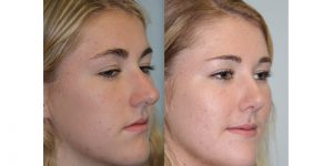 Rhinoplasty-Steven-Daines-MD-Appearance-Center-Newport-Beach-Orange-County-Plastic-Surgery11.2