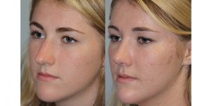 Rhinoplasty-Steven-Daines-MD-Appearance-Center-Newport-Beach-Orange-County-Plastic-Surgery11.4