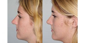Rhinoplasty-Steven-Daines-MD-Appearance-Center-Newport-Beach-Orange-County-Plastic-Surgery11.5