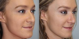 Rhinoplasty-Steven-Daines-MD-Appearance-Center-Newport-Beach-Orange-County-Plastic-Surgery12.2