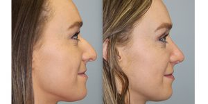Rhinoplasty-Steven-Daines-MD-Appearance-Center-Newport-Beach-Orange-County-Plastic-Surgery12.3