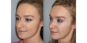 Rhinoplasty-Steven-Daines-MD-Appearance-Center-Newport-Beach-Orange-County-Plastic-Surgery12.4