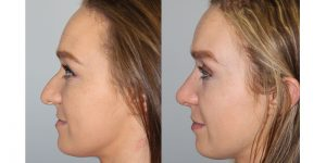 Rhinoplasty-Steven-Daines-MD-Appearance-Center-Newport-Beach-Orange-County-Plastic-Surgery12.5