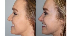 Rhinoplasty-Steven-Daines-MD-Appearance-Center-Newport-Beach-Orange-County-Plastic-Surgery12.6