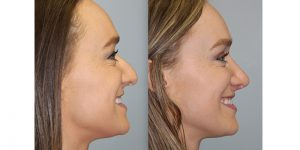 Rhinoplasty-Steven-Daines-MD-Appearance-Center-Newport-Beach-Orange-County-Plastic-Surgery12.7
