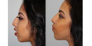 Rhinoplasty-Steven-Daines-MD-Appearance-Center-Newport-Beach-Orange-County-Plastic-Surgery13.1