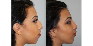 Rhinoplasty-Steven-Daines-MD-Appearance-Center-Newport-Beach-Orange-County-Plastic-Surgery13.2