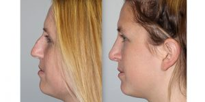 Rhinoplasty-Steven-Daines-MD-Appearance-Center-Newport-Beach-Orange-County-Plastic-Surgery14.1
