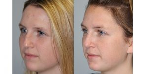 Rhinoplasty-Steven-Daines-MD-Appearance-Center-Newport-Beach-Orange-County-Plastic-Surgery14.2