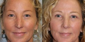 Rhinoplasty-Steven-Daines-MD-Appearance-Center-Newport-Beach-Orange-County-Plastic-Surgery15.1