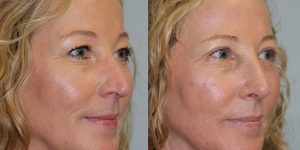 Rhinoplasty-Steven-Daines-MD-Appearance-Center-Newport-Beach-Orange-County-Plastic-Surgery15.2