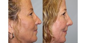Rhinoplasty-Steven-Daines-MD-Appearance-Center-Newport-Beach-Orange-County-Plastic-Surgery15.3