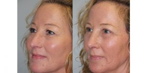 Rhinoplasty-Steven-Daines-MD-Appearance-Center-Newport-Beach-Orange-County-Plastic-Surgery15.4