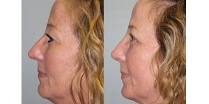Rhinoplasty-Steven-Daines-MD-Appearance-Center-Newport-Beach-Orange-County-Plastic-Surgery15.5