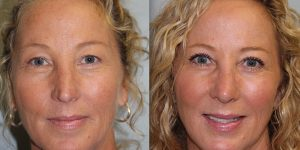 Rhinoplasty-Steven-Daines-MD-Appearance-Center-Newport-Beach-Orange-County-Plastic-Surgery15.7
