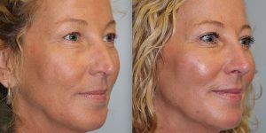 Rhinoplasty-Steven-Daines-MD-Appearance-Center-Newport-Beach-Orange-County-Plastic-Surgery15.8