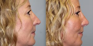 Rhinoplasty-Steven-Daines-MD-Appearance-Center-Newport-Beach-Orange-County-Plastic-Surgery15.9