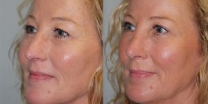 Rhinoplasty-Steven-Daines-MD-Appearance-Center-Newport-Beach-Orange-County-Plastic-Surgery15.92