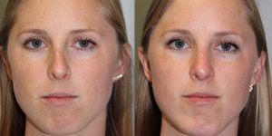 Rhinoplasty-Steven-Daines-MD-Appearance-Center-Newport-Beach-Orange-County-Plastic-Surgery16.1
