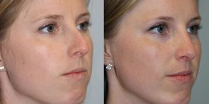 Rhinoplasty-Steven-Daines-MD-Appearance-Center-Newport-Beach-Orange-County-Plastic-Surgery16.2