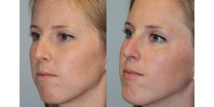 Rhinoplasty-Steven-Daines-MD-Appearance-Center-Newport-Beach-Orange-County-Plastic-Surgery16.3