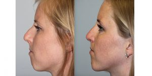 Rhinoplasty-Steven-Daines-MD-Appearance-Center-Newport-Beach-Orange-County-Plastic-Surgery16.4