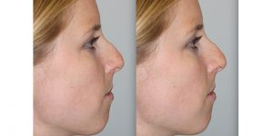 Rhinoplasty-Steven-Daines-MD-Appearance-Center-Newport-Beach-Orange-County-Plastic-Surgery16.5