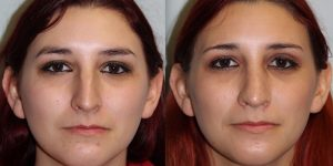 Rhinoplasty-Steven-Daines-MD-Appearance-Center-Newport-Beach-Orange-County-Plastic-Surgery18.1
