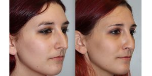 Rhinoplasty-Steven-Daines-MD-Appearance-Center-Newport-Beach-Orange-County-Plastic-Surgery18.2