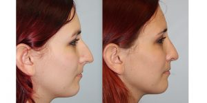 Rhinoplasty-Steven-Daines-MD-Appearance-Center-Newport-Beach-Orange-County-Plastic-Surgery18.3