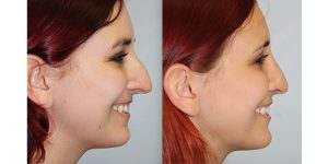 Rhinoplasty-Steven-Daines-MD-Appearance-Center-Newport-Beach-Orange-County-Plastic-Surgery18.4