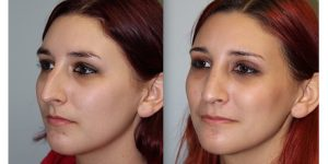 Rhinoplasty-Steven-Daines-MD-Appearance-Center-Newport-Beach-Orange-County-Plastic-Surgery18.5