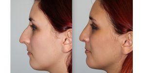 Rhinoplasty-Steven-Daines-MD-Appearance-Center-Newport-Beach-Orange-County-Plastic-Surgery18.6