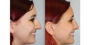 Rhinoplasty-Steven-Daines-MD-Appearance-Center-Newport-Beach-Orange-County-Plastic-Surgery18.8