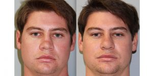 Rhinoplasty-Steven-Daines-MD-Appearance-Center-Newport-Beach-Orange-County-Plastic-Surgery2.1