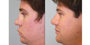 Rhinoplasty-Steven-Daines-MD-Appearance-Center-Newport-Beach-Orange-County-Plastic-Surgery2.2
