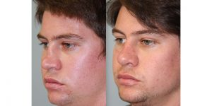 Rhinoplasty-Steven-Daines-MD-Appearance-Center-Newport-Beach-Orange-County-Plastic-Surgery2.3