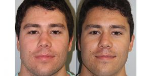 Rhinoplasty-Steven-Daines-MD-Appearance-Center-Newport-Beach-Orange-County-Plastic-Surgery3.1