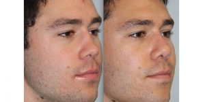 Rhinoplasty-Steven-Daines-MD-Appearance-Center-Newport-Beach-Orange-County-Plastic-Surgery3.2