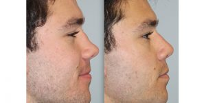 Rhinoplasty-Steven-Daines-MD-Appearance-Center-Newport-Beach-Orange-County-Plastic-Surgery3.3
