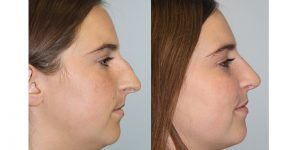 Rhinoplasty-Steven-Daines-MD-Appearance-Center-Newport-Beach-Orange-County-Plastic-Surgery4.1