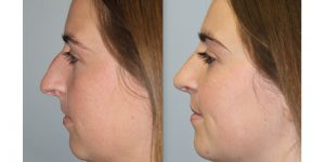 Rhinoplasty-Steven-Daines-MD-Appearance-Center-Newport-Beach-Orange-County-Plastic-Surgery4.2