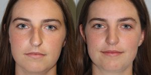 Rhinoplasty-Steven-Daines-MD-Appearance-Center-Newport-Beach-Orange-County-Plastic-Surgery4.3