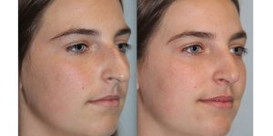 Rhinoplasty-Steven-Daines-MD-Appearance-Center-Newport-Beach-Orange-County-Plastic-Surgery4.4