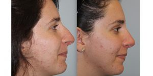 Rhinoplasty-Steven-Daines-MD-Appearance-Center-Newport-Beach-Orange-County-Plastic-Surgery5.1