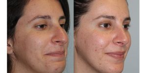 Rhinoplasty-Steven-Daines-MD-Appearance-Center-Newport-Beach-Orange-County-Plastic-Surgery5.2
